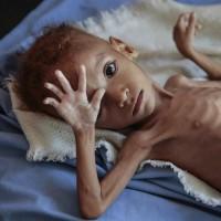 世界糧食計劃署:葉門有840萬人因内戰陷飢荒