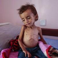 葉門内戰導致8萬兒童餓死 NGO:他們連哭的力氣都沒有了
