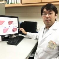 肝癌反覆栓塞頻復發 二線藥物有效控制腫瘤生長