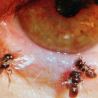 4 sweat bees found crawling in Taiwanese woman's eye